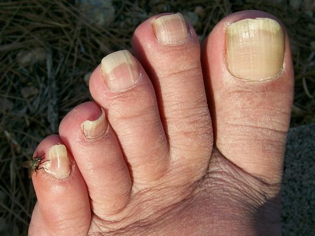 dedos pie izquierdo hombre
