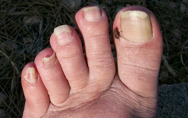 mosca en dedo pulgar gordo del pie